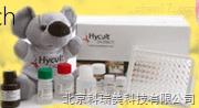 肝型脂肪酸结合蛋白L-FABP试剂盒