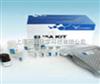 96T人骨成型蛋白受体1A(BMPR-1A)ELISA Kit