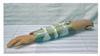 KAH/H340上臂骨折-模型